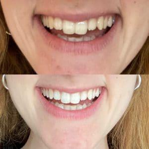 foto prima e dopo white pro